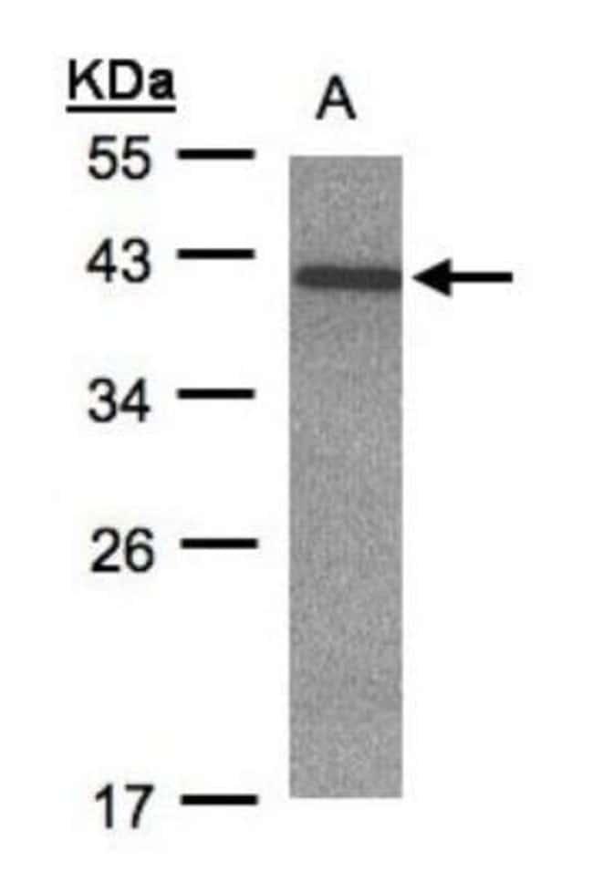 anti-CDK20, Polyclonal, Novus Biologicals 0.1mL; Unlabeled:Antibodies