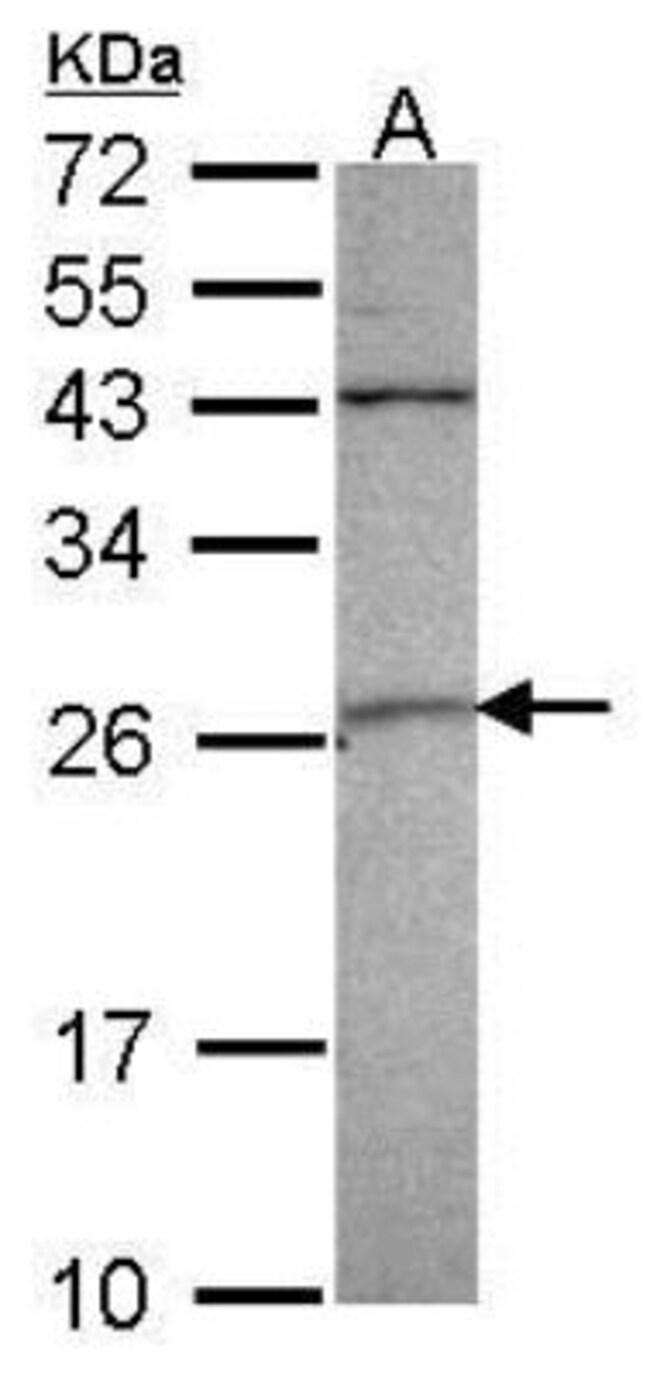 anti-Cdk3, Polyclonal, Novus Biologicals 0.1mg; Unlabeled:Life Sciences
