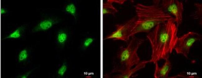 anti-CDK4, Polyclonal, Novus Biologicals 0.1mg; Unlabeled:Life Sciences