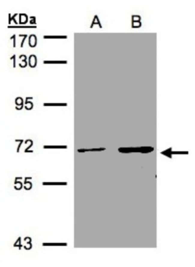 anti-CDYL, Polyclonal, Novus Biologicals 0.1mg; Unlabeled:Life Sciences