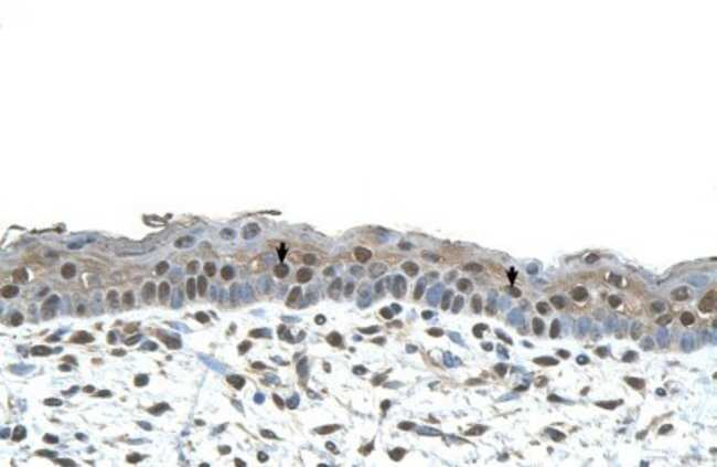 CENPA Rabbit anti-Human, Polyclonal, Novus Biologicals 20µL; Unlabeled