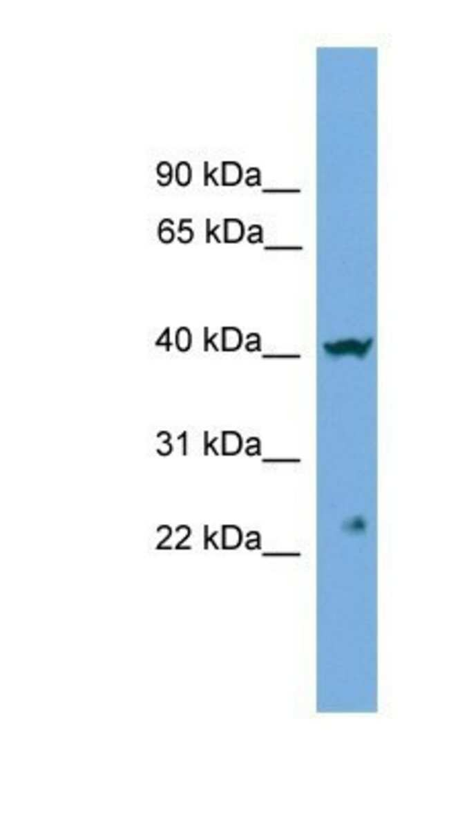 CENPN Rabbit anti-Human, Polyclonal, Novus Biologicals 20µL; Unlabeled