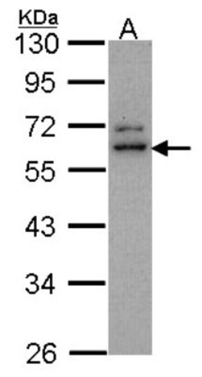 anti-Centaurin alpha 2, Polyclonal, Novus Biologicals 0.1mL; Unlabeled:Antibodies