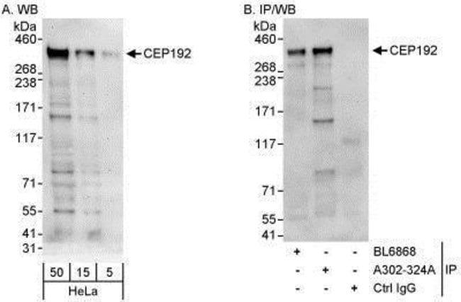 anti-CEP192, Polyclonal, Novus Biologicals 0.1mg; Unlabeled:Life Sciences