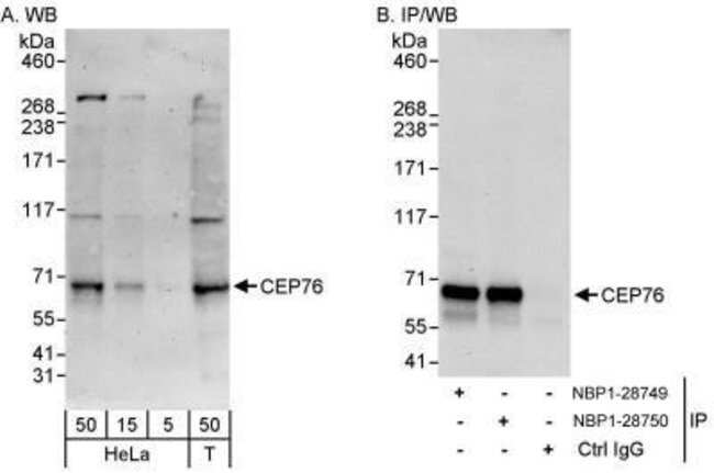 anti-CEP76, Polyclonal, Novus Biologicals 0.1mg; Unlabeled:Life Sciences