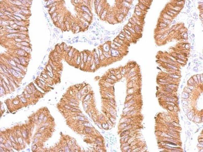 anti-CES2, Polyclonal, Novus Biologicals 0.1mg; Unlabeled:Life Sciences