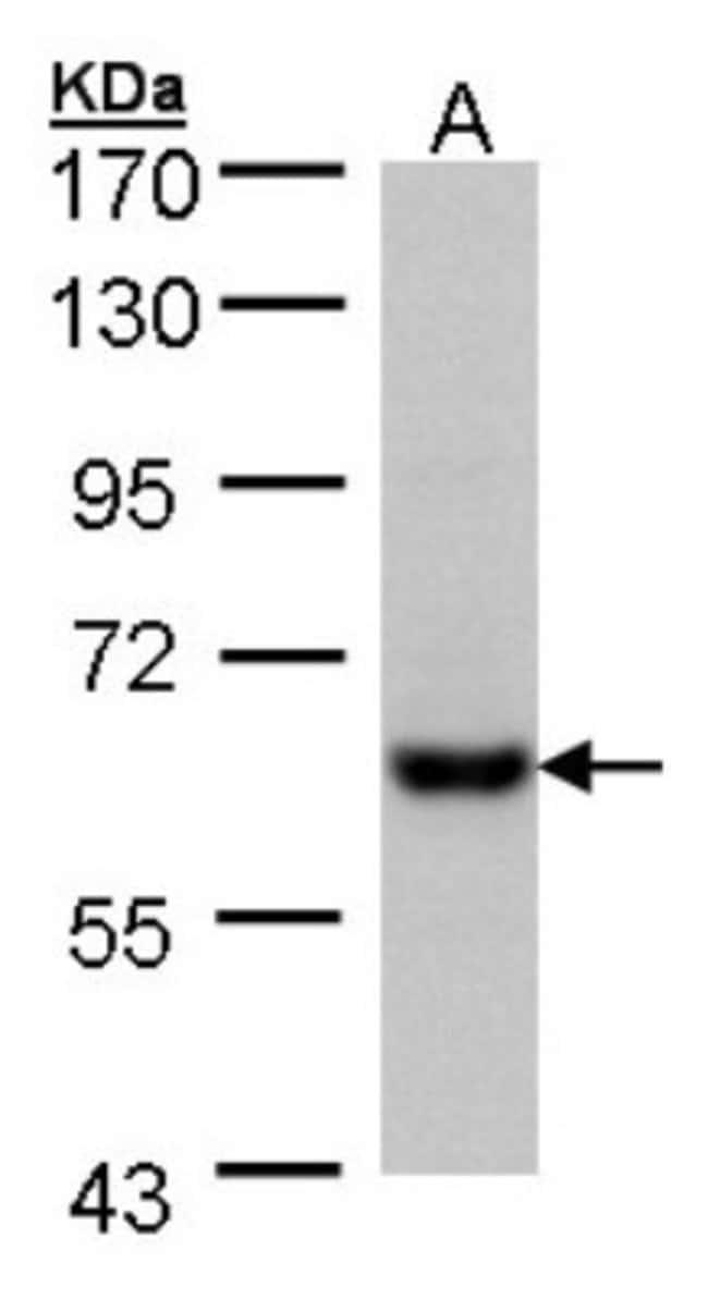 anti-CES2, Polyclonal, Novus Biologicals 0.1mg; Unlabeled:Antibodies