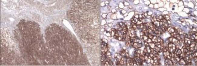 Novus Biologicals Chemotherapy Insensitive Tumor Cells Antibody Pack 4