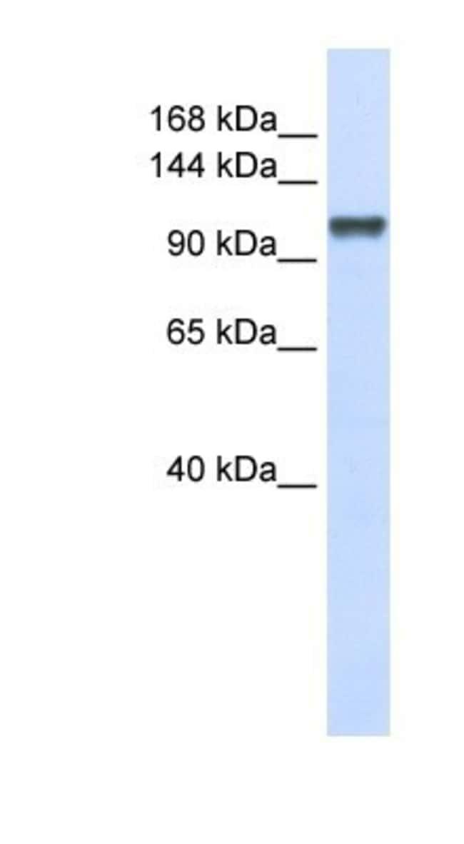 CHERP Rabbit anti-Human, Polyclonal, Novus Biologicals 100µL; Unlabeled:Life