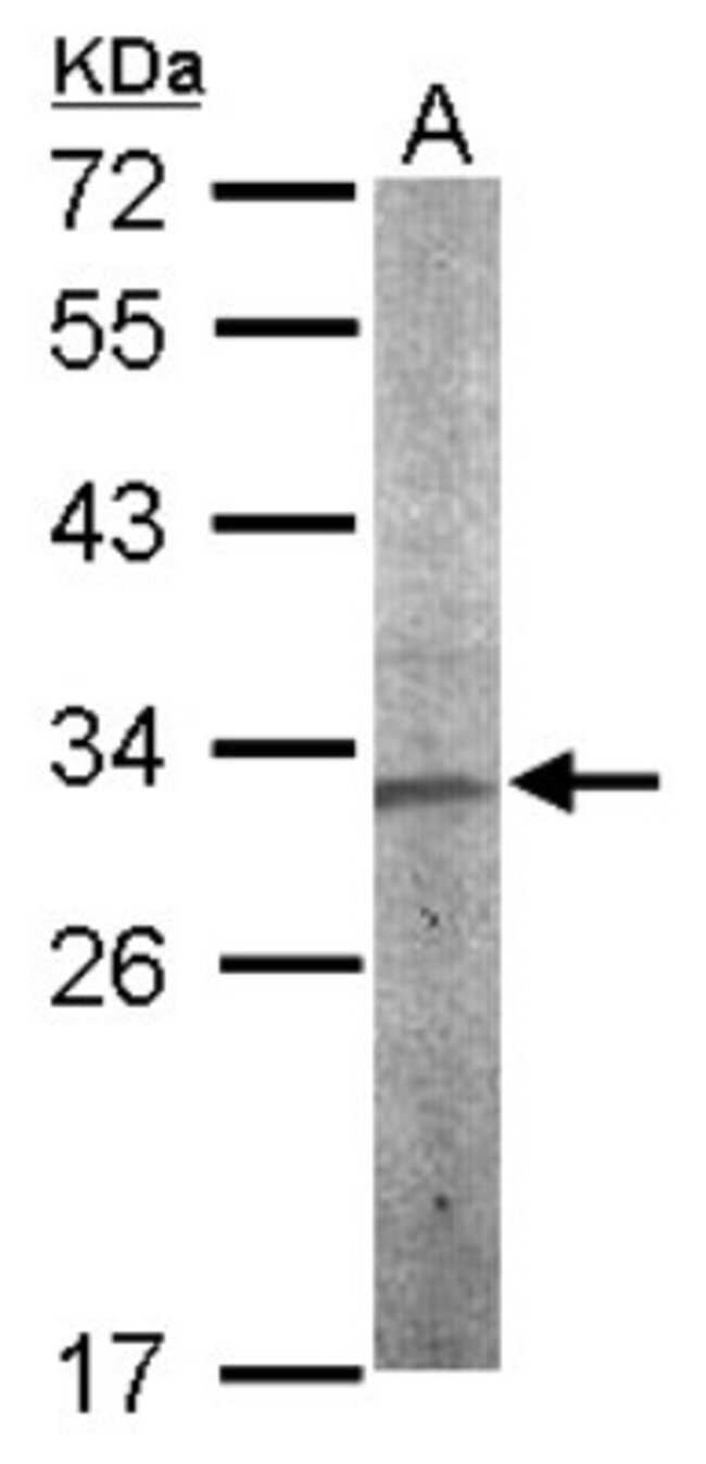 anti-CHMP5, Polyclonal, Novus Biologicals 0.1mL; Unlabeled:Life Sciences