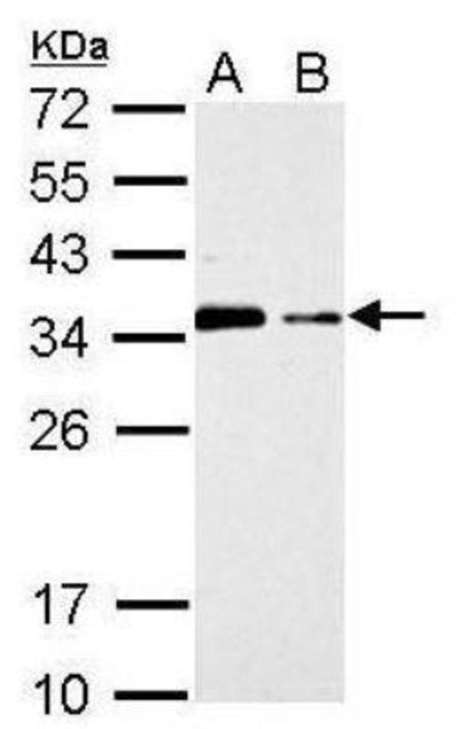 anti-CISH/CIS-1, Polyclonal, Novus Biologicals 0.1mg; Unlabeled:Antibodies