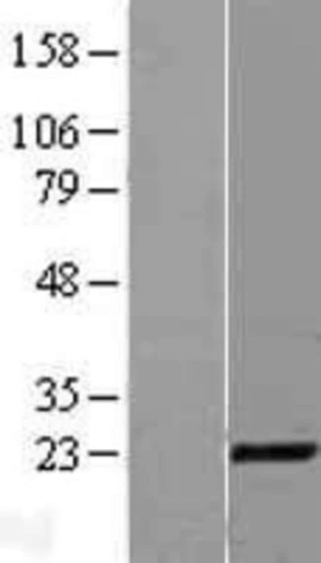 Novus Biologicals CITED1 Overexpression Lysate (Native) 0.1mg:Life Sciences
