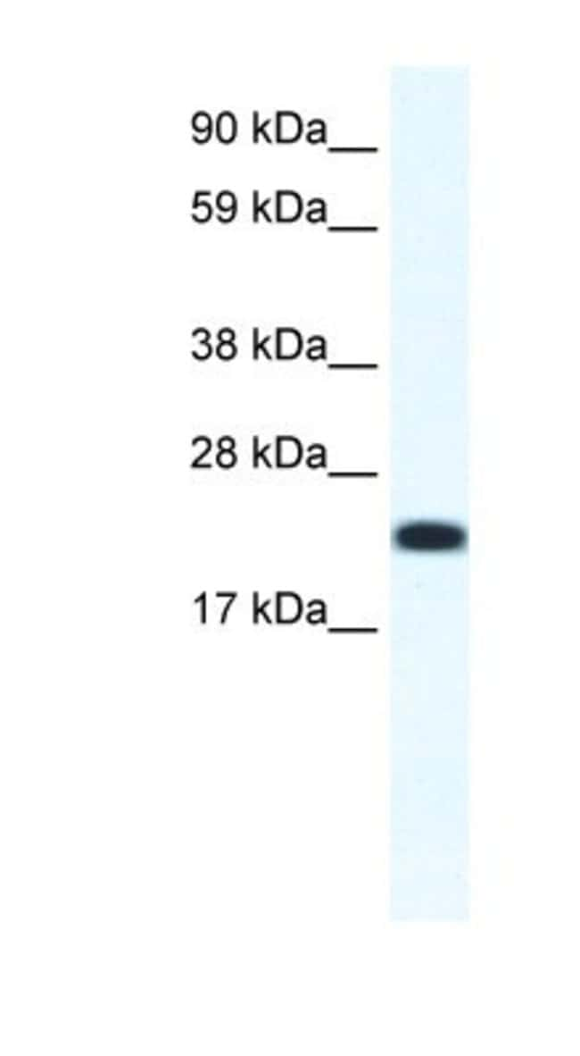 anti-CITED4, Polyclonal, Novus Biologicals 0.1mg; Unlabeled:Life Sciences