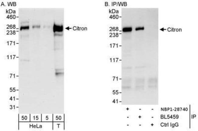Citron Kinase Rabbit anti-Human, Polyclonal, Novus Biologicals 0.1mg; Unlabeled:Life