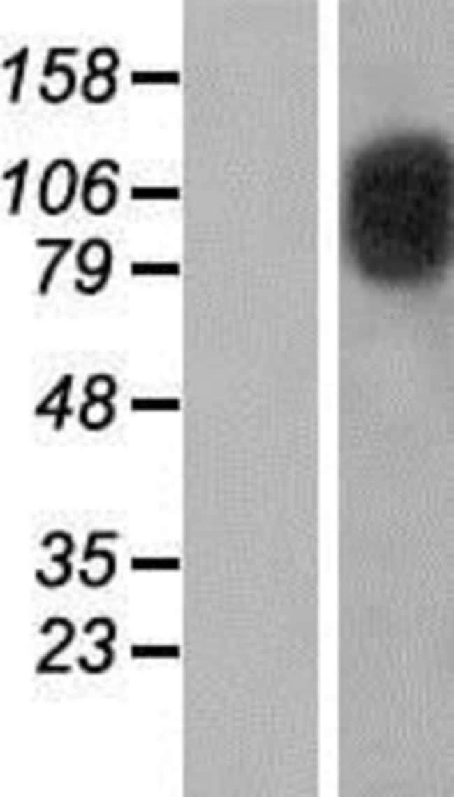 Novus Biologicals CIZ1 Overexpression Lysate (Native) 0.1mg:Life Sciences