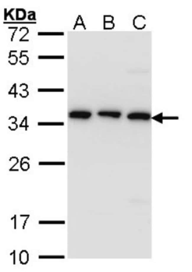 anti-CKAP1, Polyclonal, Novus Biologicals 0.1mL; Unlabeled:Antibodies