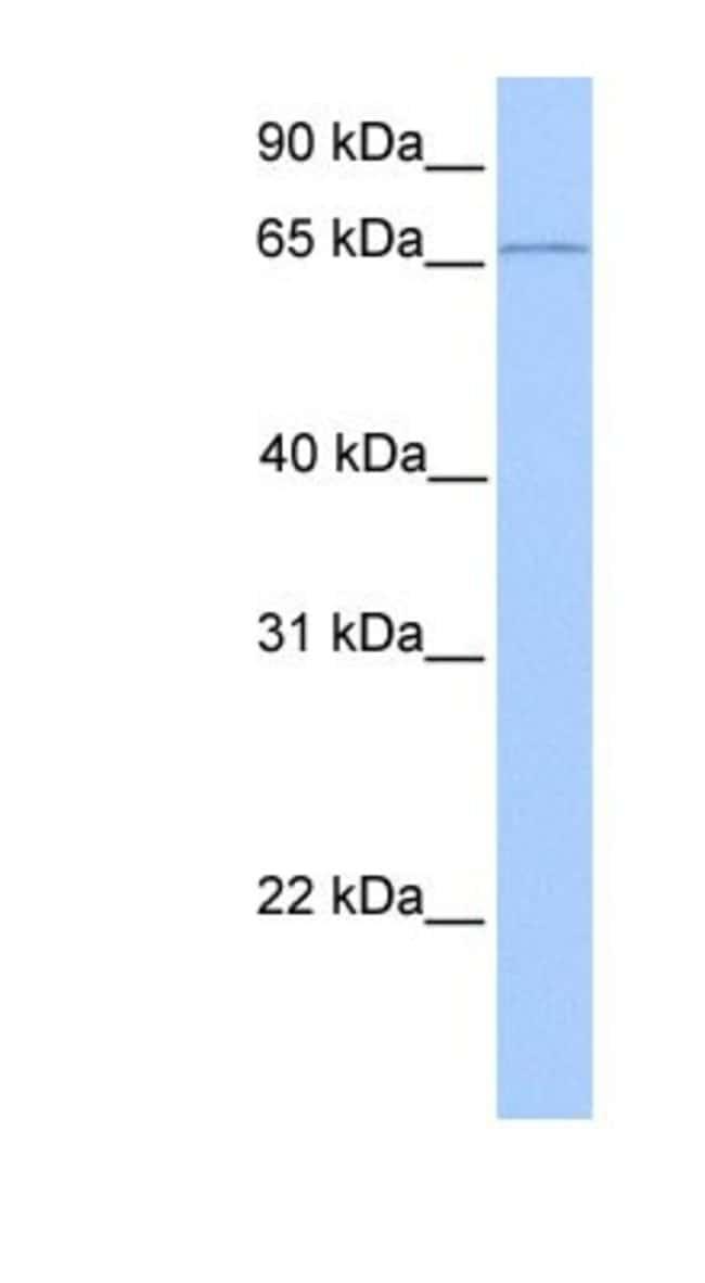 CLCNKA Rabbit anti-Human, Polyclonal, Novus Biologicals 20µL; Unlabeled