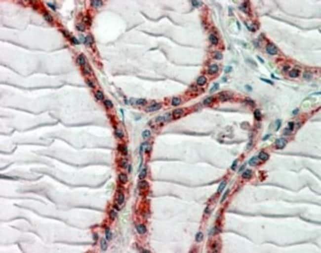 anti-CLIP170, Polyclonal, Novus Biologicals 0.1mg; Unlabeled:Life Sciences
