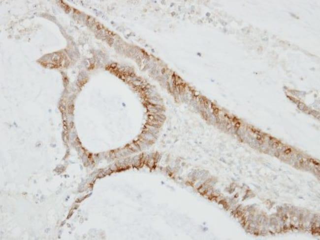 anti-CMTM6, Polyclonal, Novus Biologicals 0.1mg; Unlabeled:Life Sciences