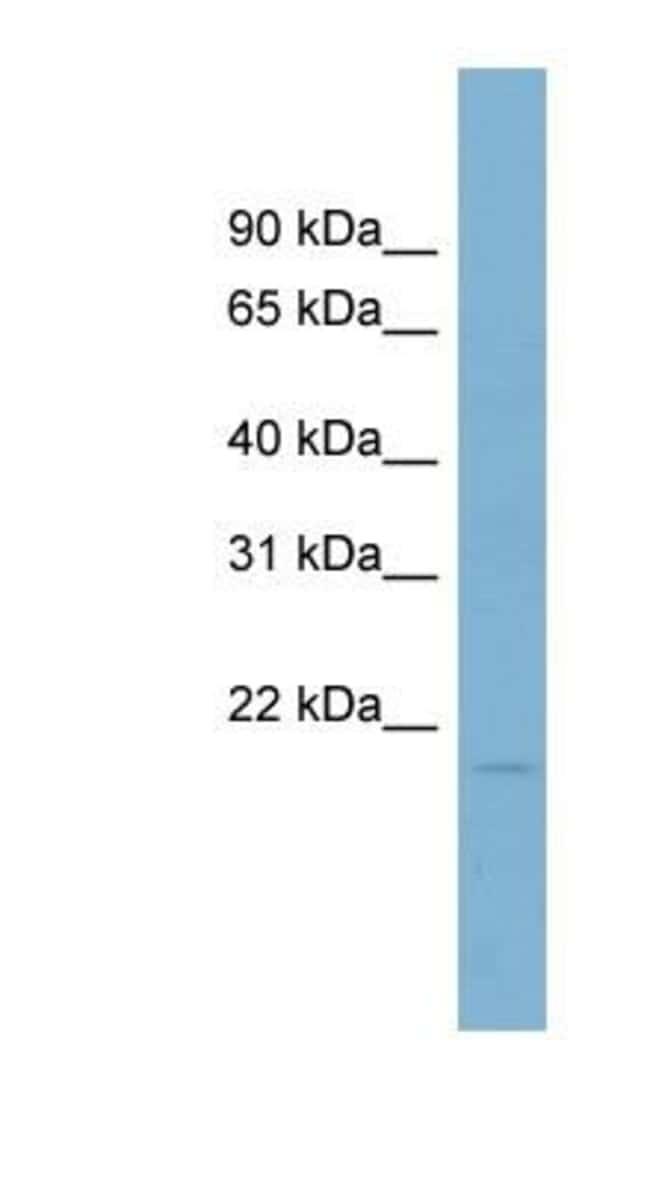 Coactosin-like Protein 1/CotL1 Rabbit anti-Human, Polyclonal, Novus Biologicals