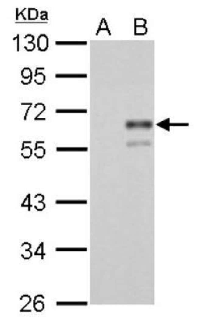 anti-Coagulation Factor X, Polyclonal, Novus Biologicals 0.1mL; Unlabeled:Life