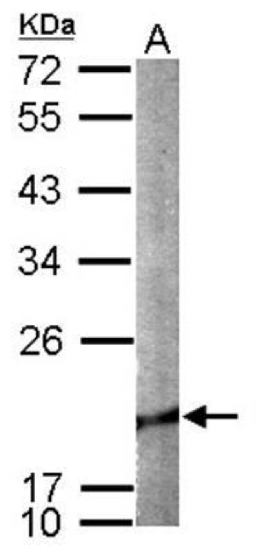 anti-Cofilin 2, Polyclonal, Novus Biologicals 0.1mL; Unlabeled:Antibodies