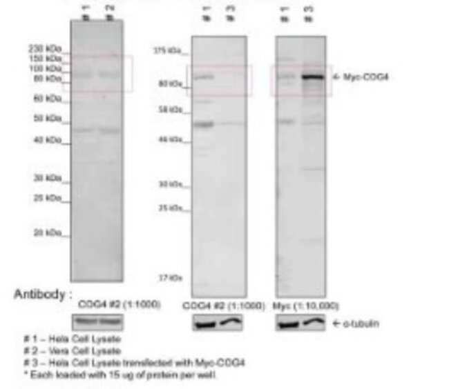 COG4 Rabbit, Polyclonal, Novus Biologicals 100µL; Unlabeled:Life Sciences