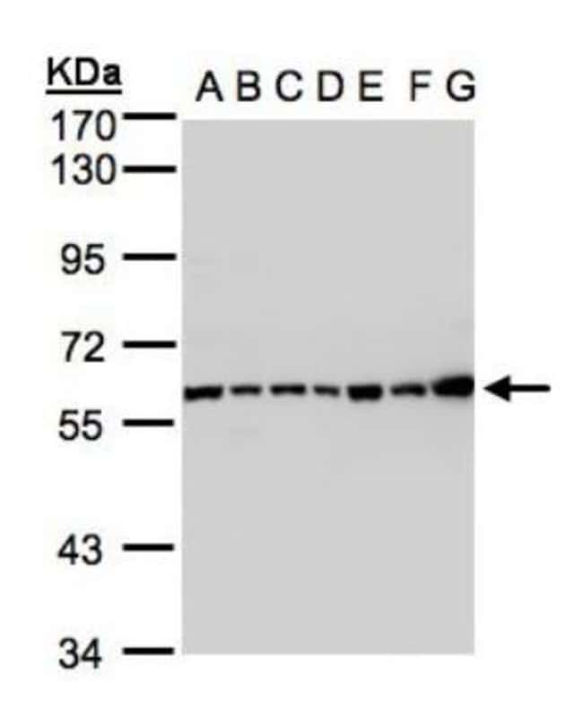 anti-Complement Component C2, Polyclonal, Novus Biologicals 0.1mg; Unlabeled:Life