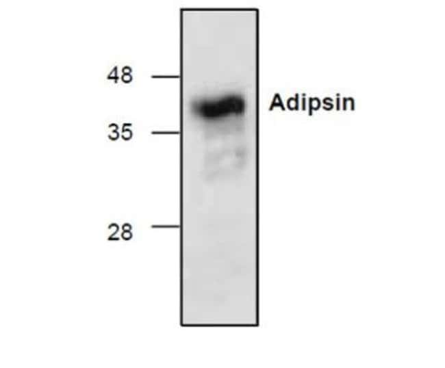 anti-Complement Factor D/Adipsin, Polyclonal, Novus Biologicals 0.1mg;