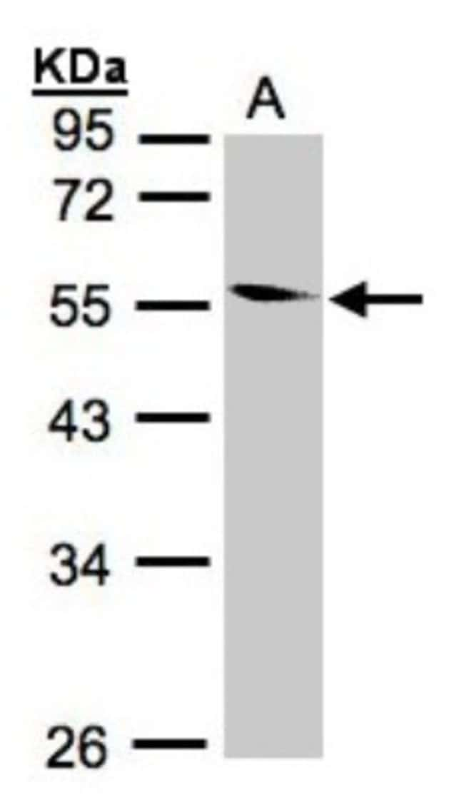 anti-CORO1B, Polyclonal, Novus Biologicals 0.1mg; Unlabeled:Life Sciences
