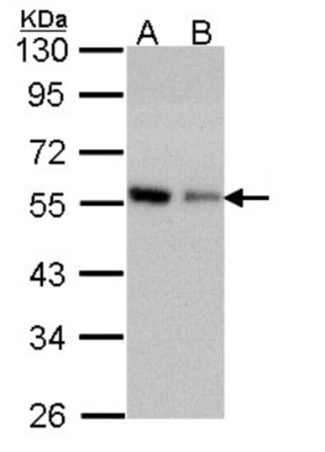 Coronin 3 Rabbit anti-Human, Mouse, Polyclonal, Novus Biologicals 0.1mL;