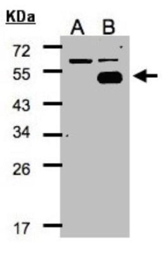 anti-COUP-TF I/NR2F1, Polyclonal, Novus Biologicals 0.1mg; Unlabeled:Life