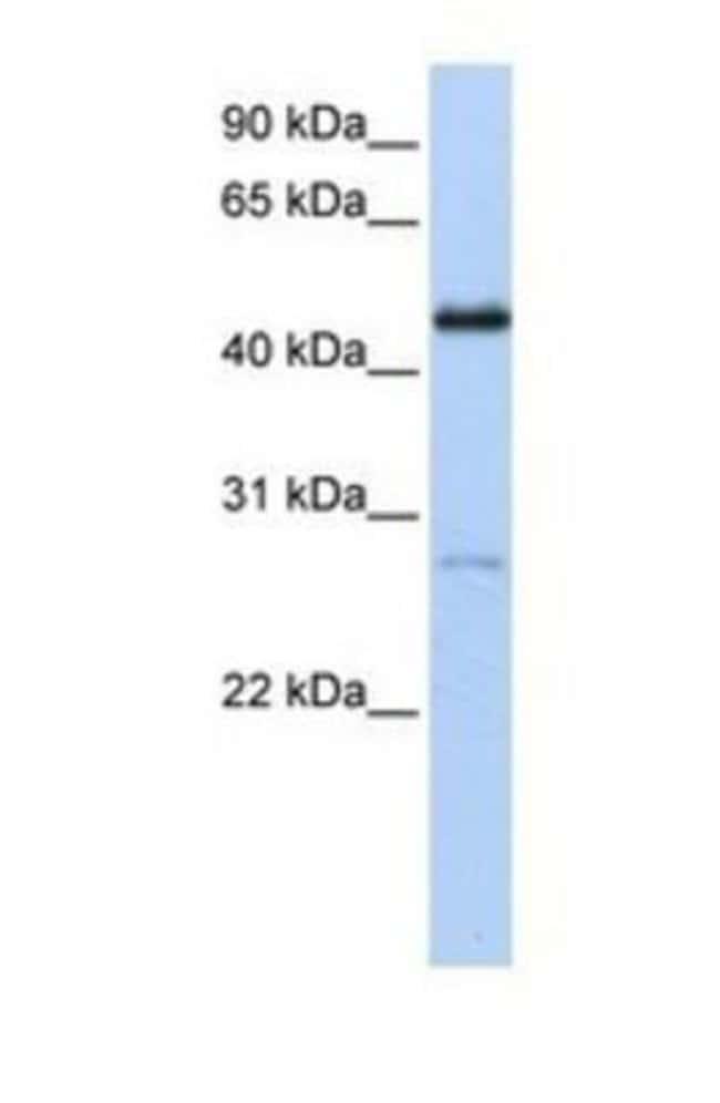 COUP-TF I/NR2F1 Rabbit, Polyclonal, Novus Biologicals 100µL; Unlabeled:Life