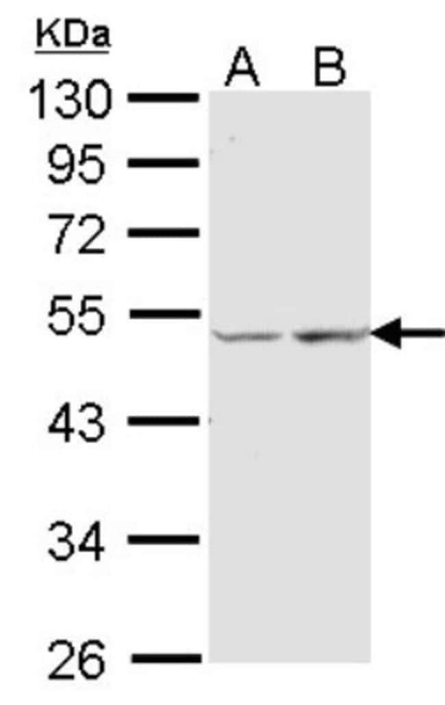 anti-COX15, Polyclonal, Novus Biologicals 0.1mL; Unlabeled:Life Sciences