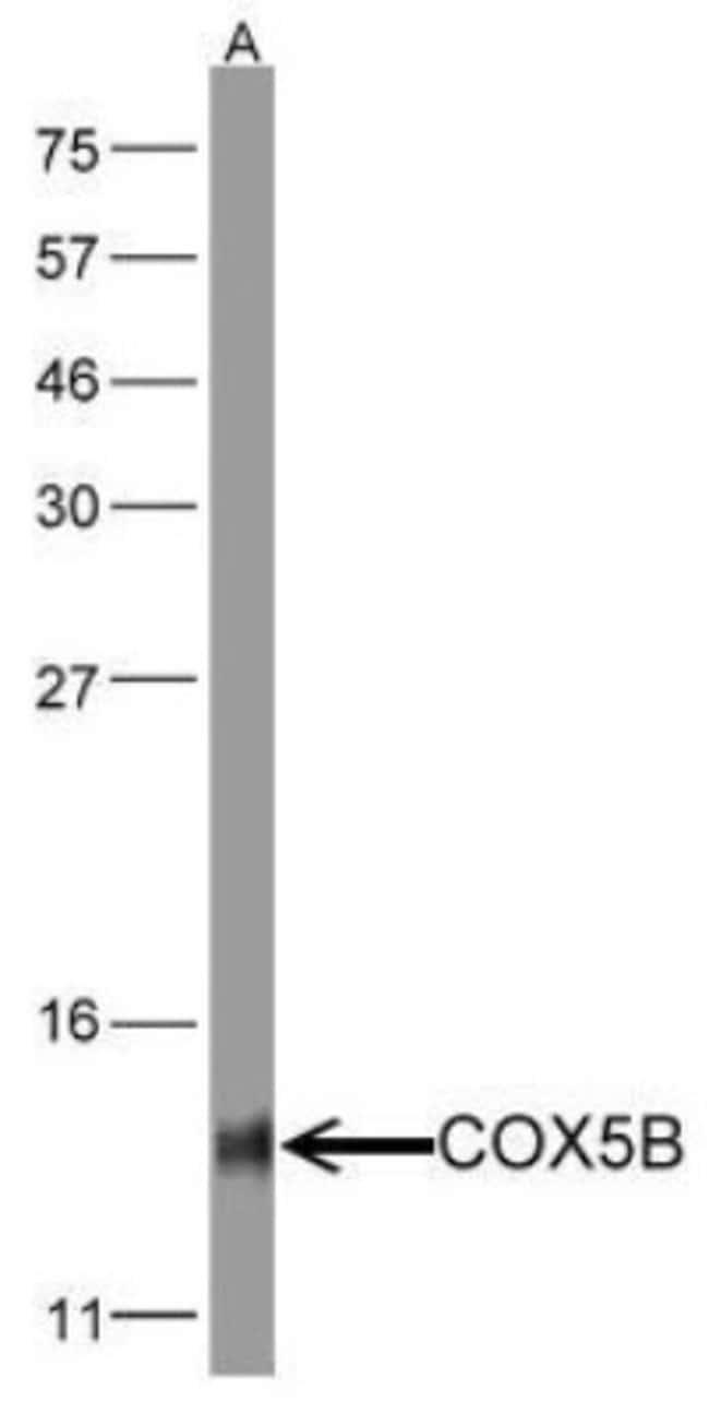anti-COX5b, Polyclonal, Novus Biologicals 0.1mL; Unlabeled:Life Sciences