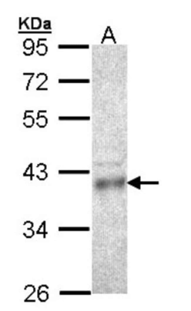 anti-CPOX, Polyclonal, Novus Biologicals 0.1mL; Unlabeled:Life Sciences