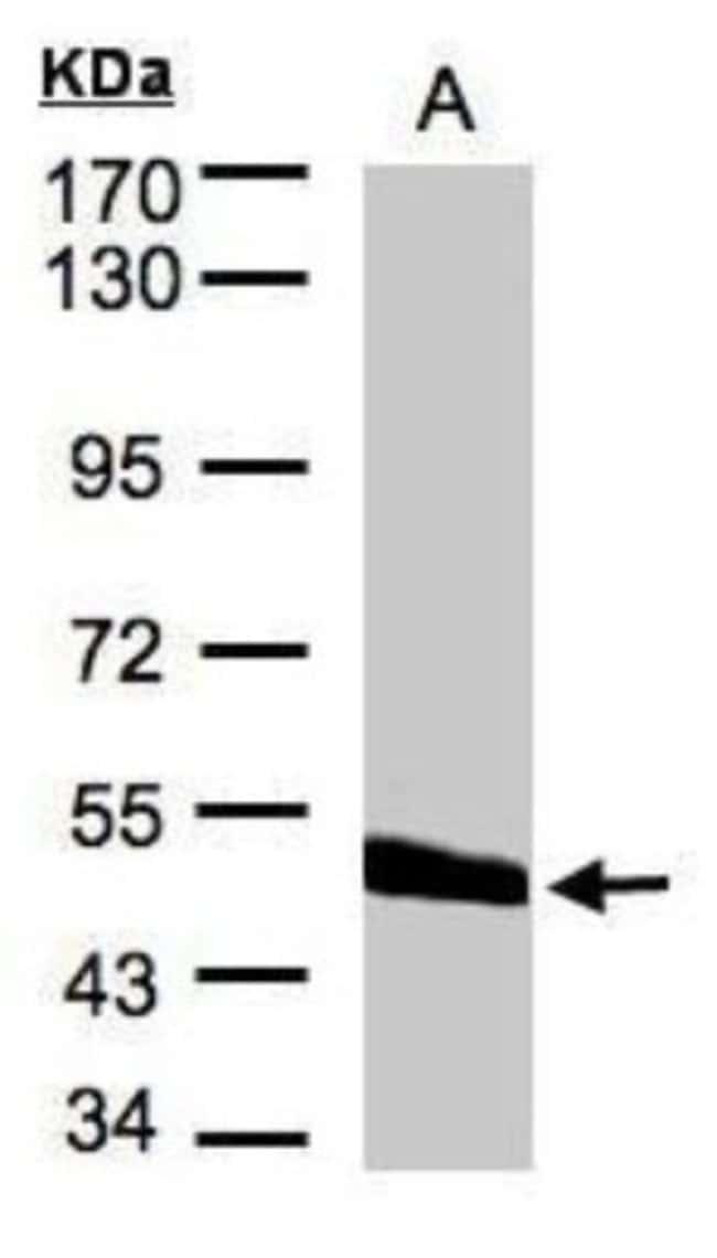 anti-CPVL, Polyclonal, Novus Biologicals 0.1mg; Unlabeled:Life Sciences