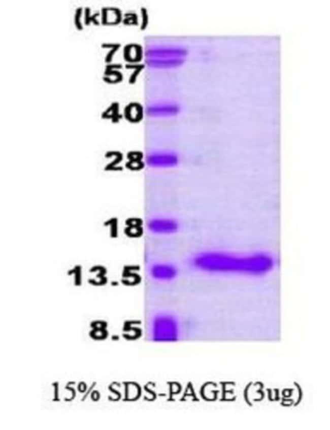Novus BiologicalsCRABP1 Protein 0.1mg; Unlabeled:Biochemical Reagents