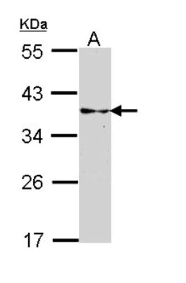 anti-CRALBP, Polyclonal, Novus Biologicals 0.1mL; Unlabeled:Life Sciences