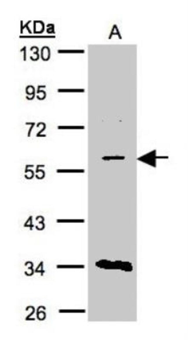 anti-CRAT, Polyclonal, Novus Biologicals 0.1mL; Unlabeled:Life Sciences