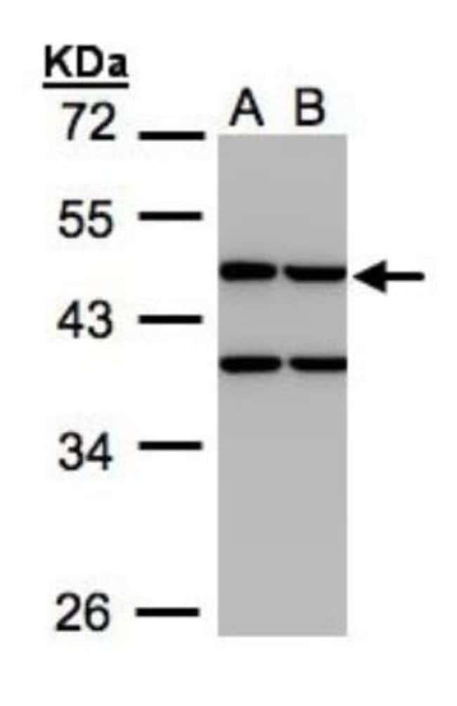 anti-Creatine kinase MT 1B, Polyclonal, Novus Biologicals 0.1mg; Unlabeled:Life