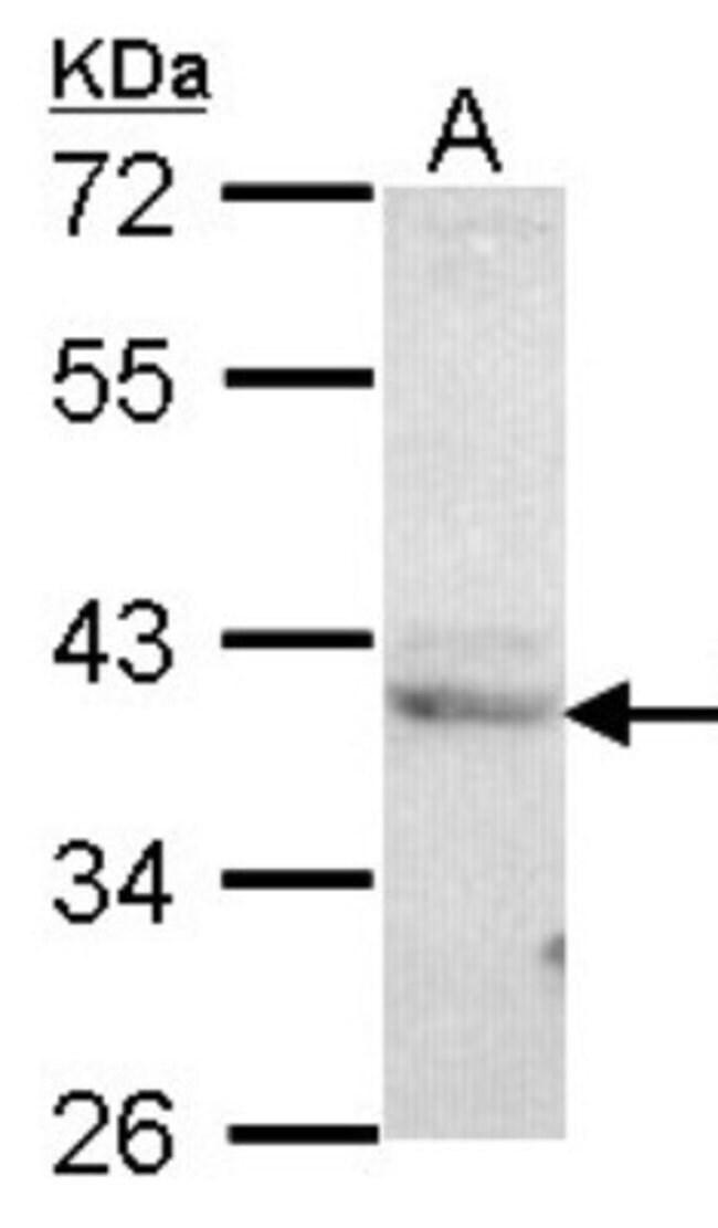 anti-CREB3, Polyclonal, Novus Biologicals 0.1mL; Unlabeled:Life Sciences
