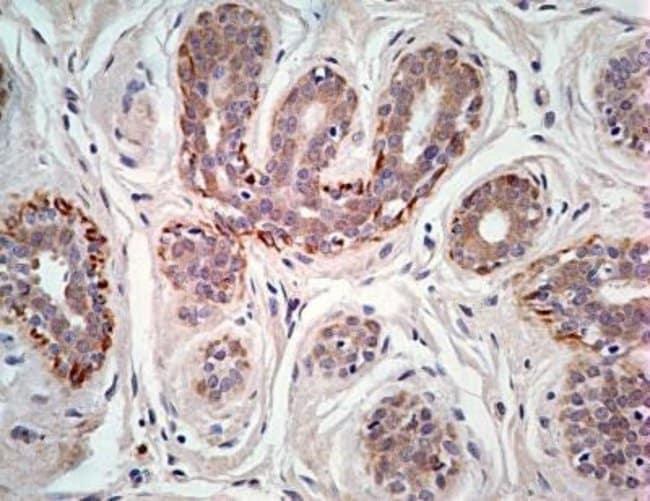 anti-TSLP R/CRLF2, Polyclonal, Novus Biologicals:Antibodies:Primary Antibodies