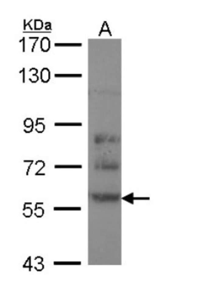 anti-CRMP2, Polyclonal, Novus Biologicals 0.1mL; Unlabeled:Life Sciences
