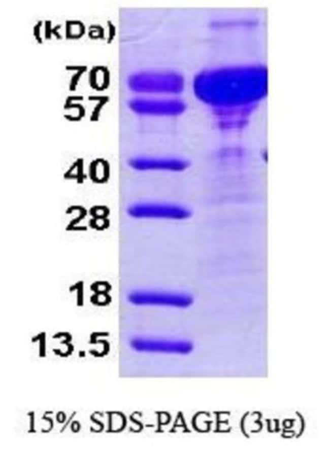Novus Biologicals Human Cornulin Protein 0.1mg; Unlabeled:Life Sciences