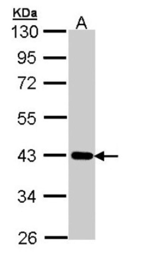 anti-CRTAP, Polyclonal, Novus Biologicals 0.1mL; Unlabeled:Antibodies