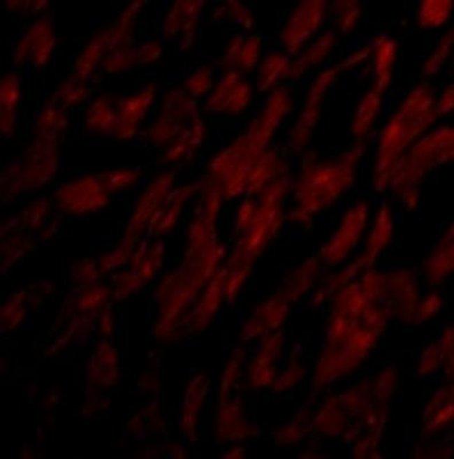 anti-CRTH-2/GPR44, Polyclonal, Novus Biologicals 0.1mg; Unlabeled:Life