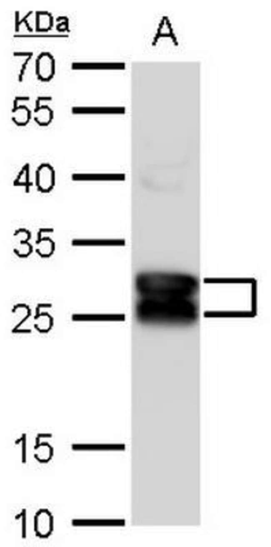 anti-CRYBA1, Polyclonal, Novus Biologicals 0.1mL; Unlabeled:Life Sciences