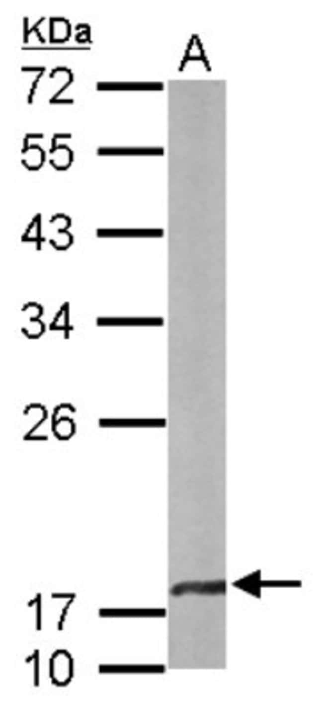 anti-CRYBA4, Polyclonal, Novus Biologicals 0.1mg; Unlabeled:Life Sciences