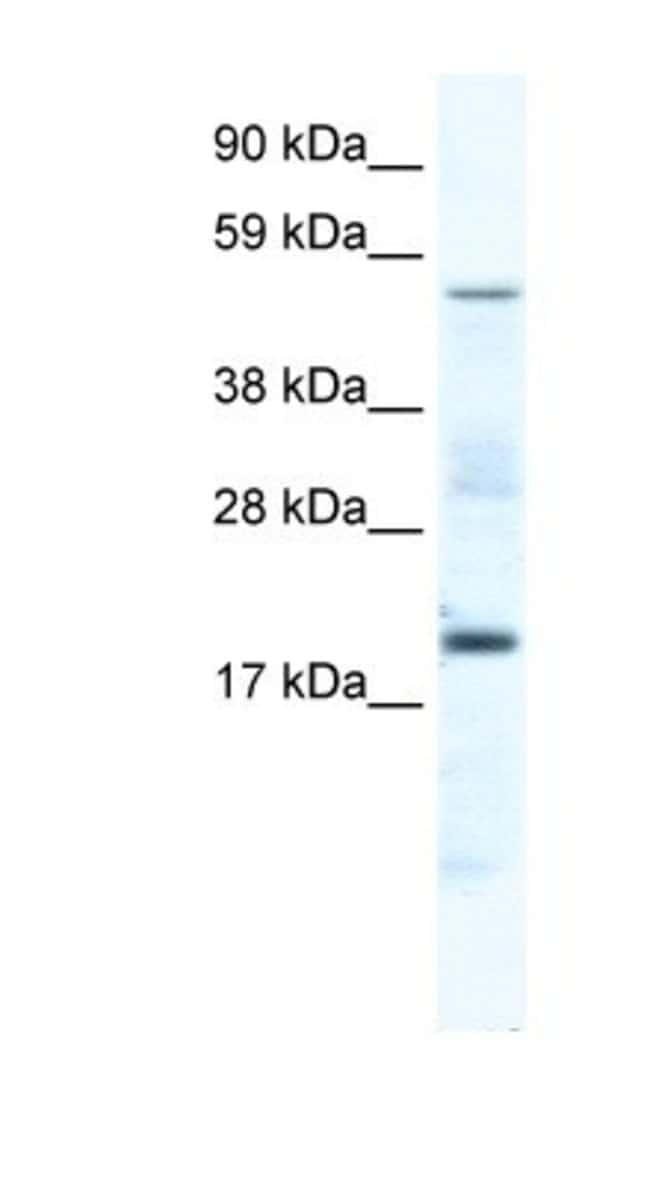 Casein Kinase 1 gamma Rabbit anti-Mouse, Polyclonal, Novus Biologicals